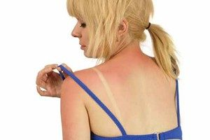 How To Treat Sunburns
