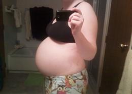 Stephanie's Story (Endometriosis)