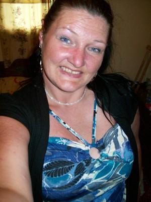 Jayne's Story (Lupus)