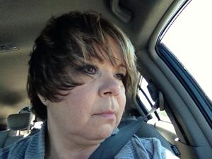 Liana's Story (Thyroid Cancer)