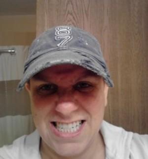 Melissa's Story (Synovial Sarcoma)
