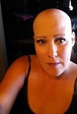 Tara's Story Cervical Cancer