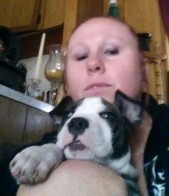 Tammy's Story Lupus Fibromyalgia