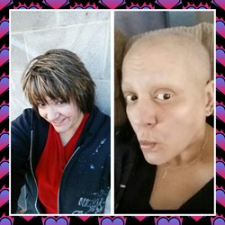 Sli's Story Ovarian Cancer