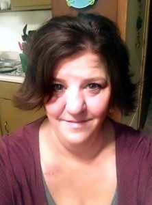 Michelle's Story Gallbladder Cancer
