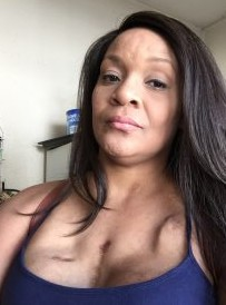 Ebony's Story Breast Cancer