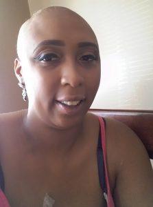 Jasmine Breast Cancer