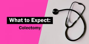 what to expect - colectomy